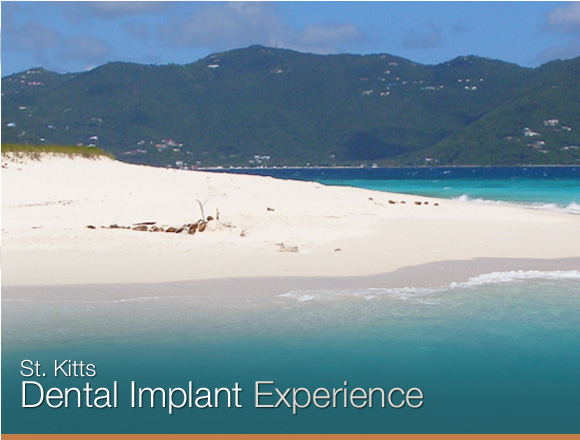 St. Kitts Dental Implant Experience